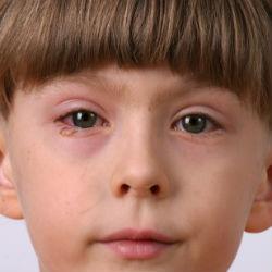 reaction allergique oeil gonflé